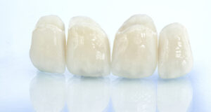 Zara_Dental_The_Benefits_Of_Dental_Crowns