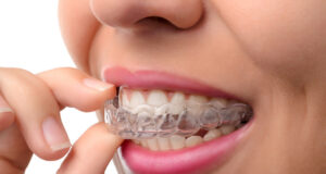 Zara_Dental_Tips_On_Choosing_The_Right_Invisible_Braces