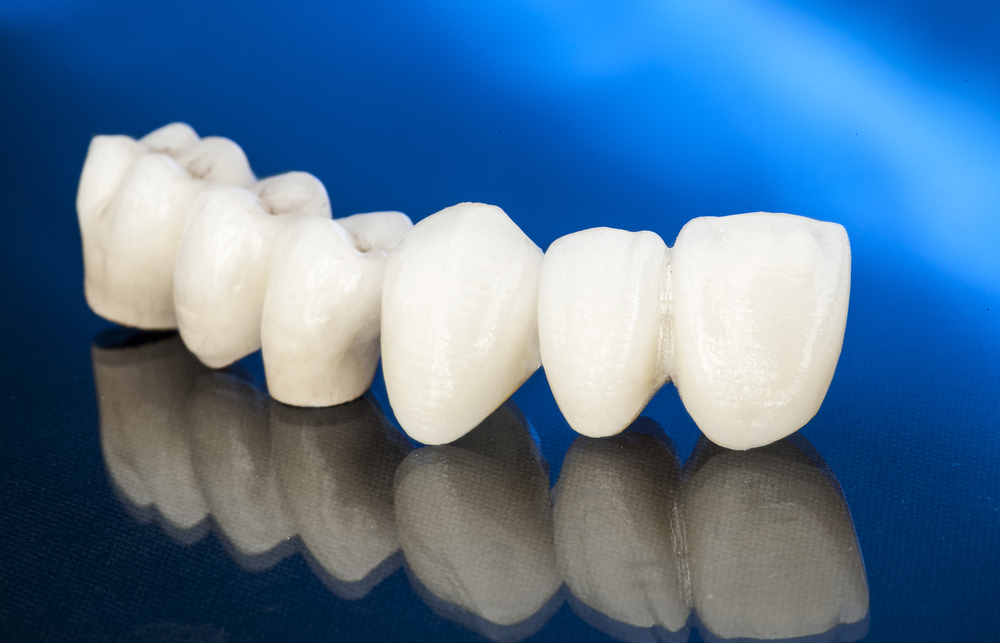 What Are The Benefits Of Full Porcelain Crowns?