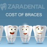 braces-cost-houston-tx
