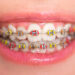Braces color for girls