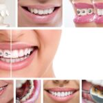 2 phased orthodontics treatment