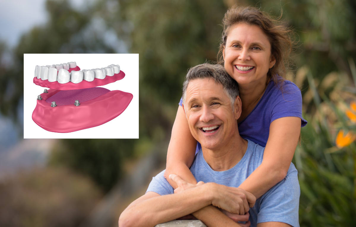 implant supported dentures Houston TX
