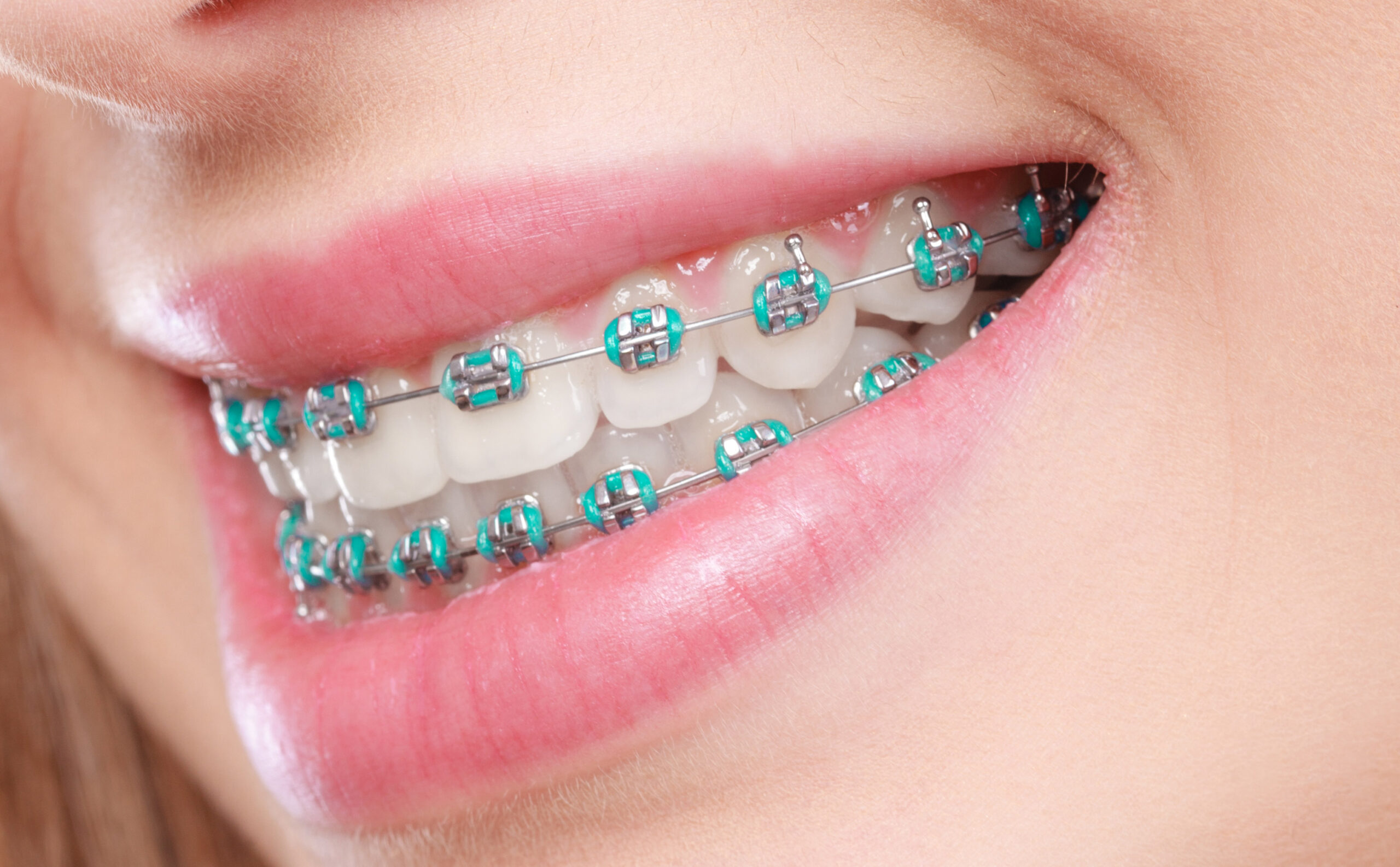 What do rubber bands do for braces